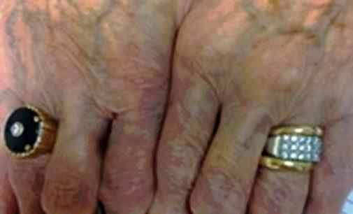 Furti ad anziani nelle Marche, sgominata banda di sinti abruzzesi