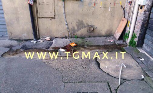Lanciano: è morto il giovane caduto dalla terrazza di viale Rimembranze, era ricoverato a Pescara