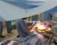 Ancona: abruzzese prepara olive all'ascolana mentre la operano al cervello, è la awake surgery